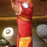 Iron Man Cast Turns a Broken Wrist Into a Good Thing