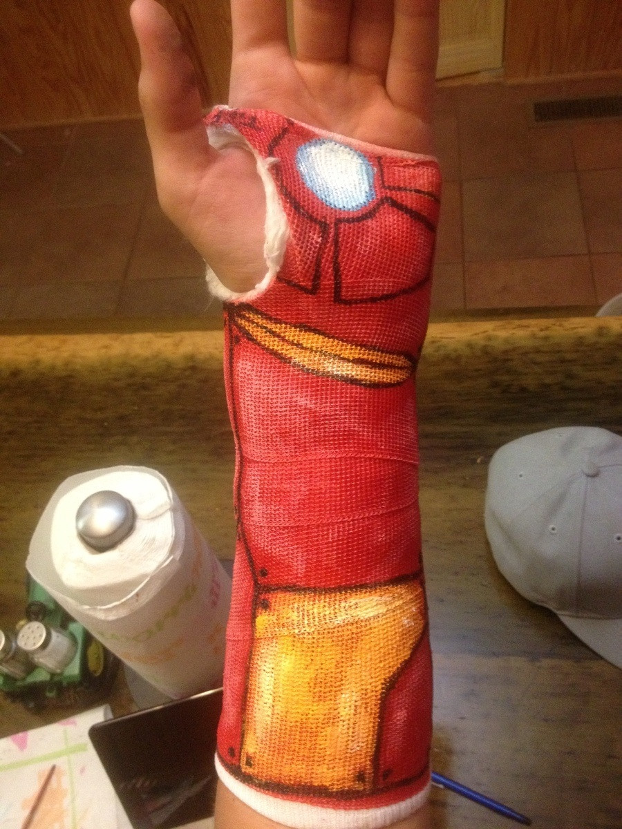 Iron Man Wrist Cast
